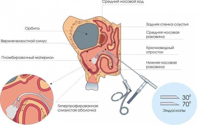 киста в пазухе носа лечение без операции