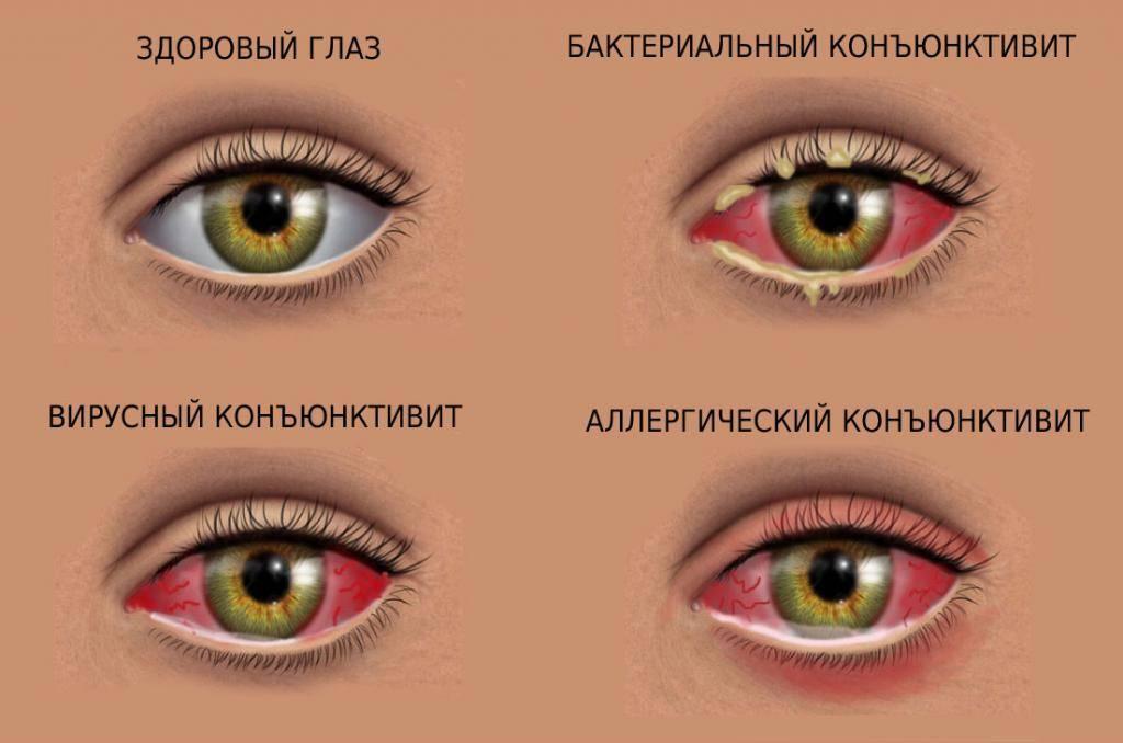 Чем промыть глаза ребенку при коньюктивите