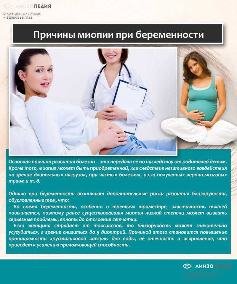 Миопия при беременности: близорукость слабой, средней и высокой степени при беременности, миопия и роды