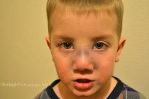 шишка на носу после удара