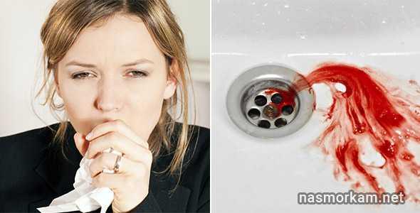 Кровь в мокроте, появляющаяся при отхаркивании