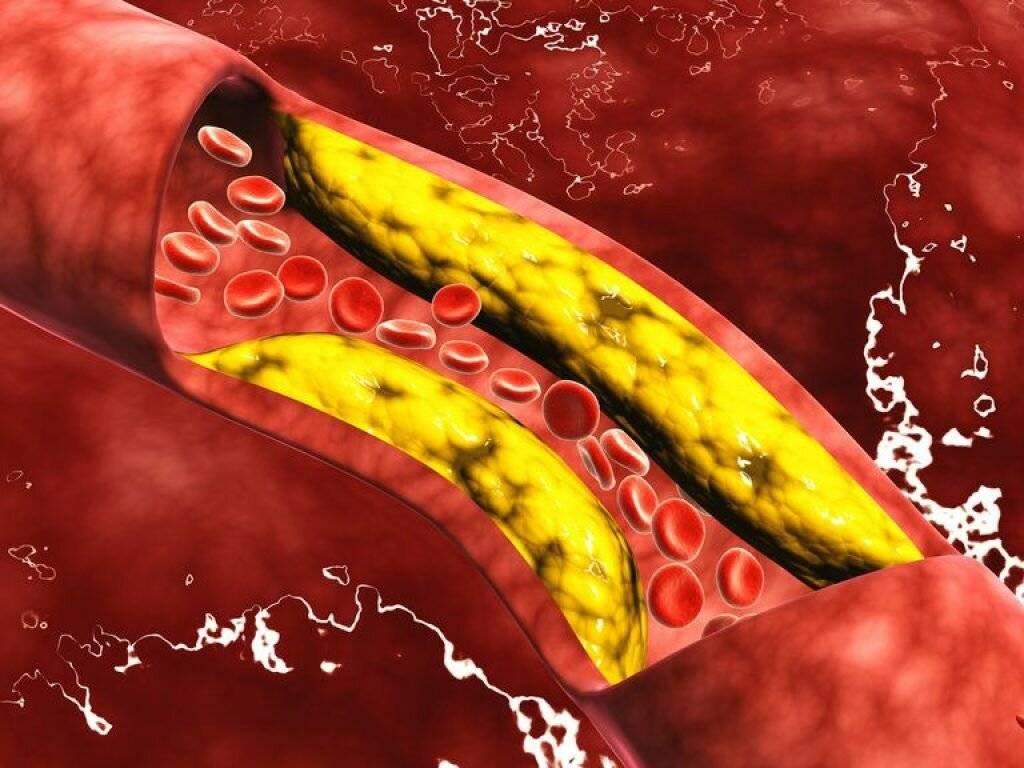 антиоксиданты и холестерин