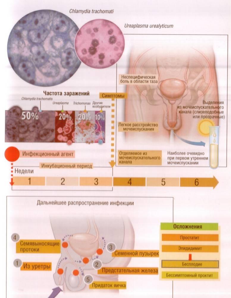 Уреаплазмоз. причины, симптомы, современная диагностика, эффективное лечение, профилактика болезни. :: polismed.com