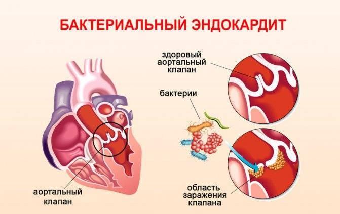 ангина осложнения на сердце