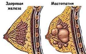 фиброкистозная мастопатия лечение народными средствами