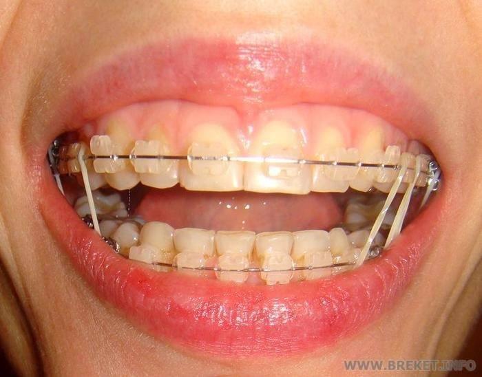 Ортодонтические резинки для брекетов
