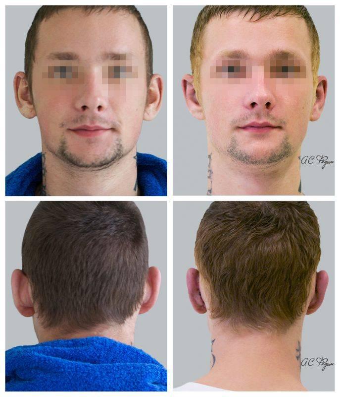 Операция пластическая на уши, чтобы не торчали. цена, фото, видео