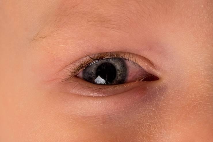 Glazik-u-grudnichka - запись пользователя елена (soliki) в сообществе здоровье новорожденных в категории болезни глаз - babyblog.ru