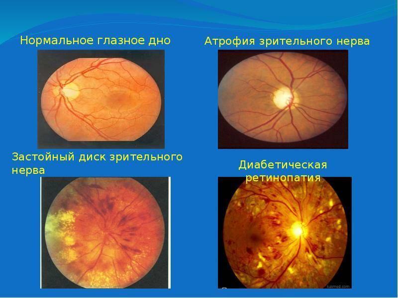 Отёк диска зрительного нерва — википедия с видео // wiki 2