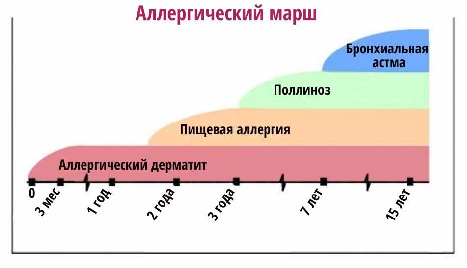 Профилактика бронхиальной астмы у детей с ад - запись пользователя катрин (nerika) в дневнике - babyblog.ru