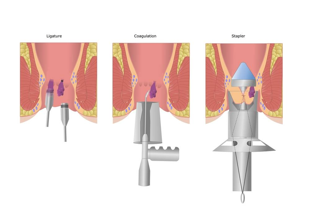 Как проводится инфракрасная коагуляция геморроидальных узлов?