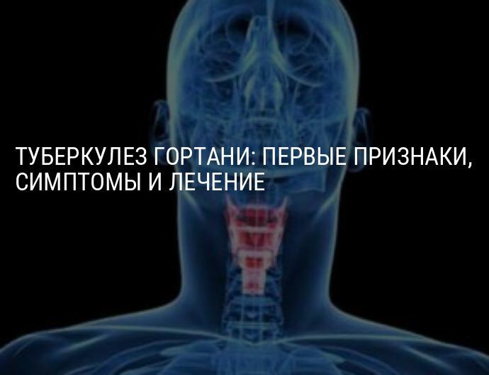 Причины, симптомы и лечение туберкулеза гортани