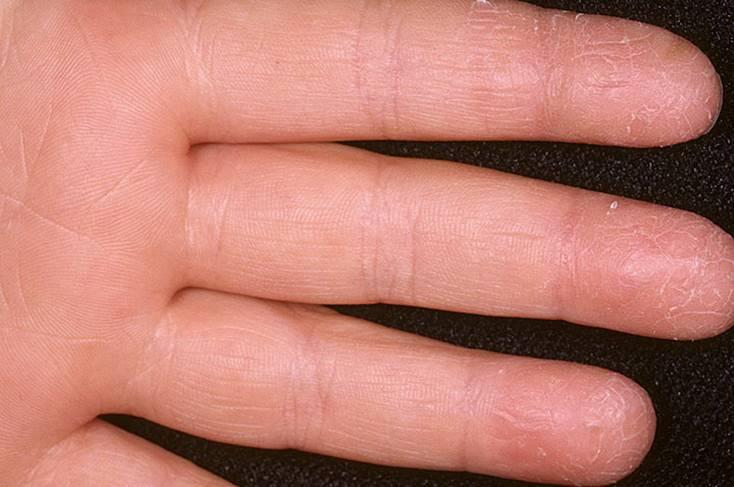 Дерматит на руках: причины, симптомы, лечение