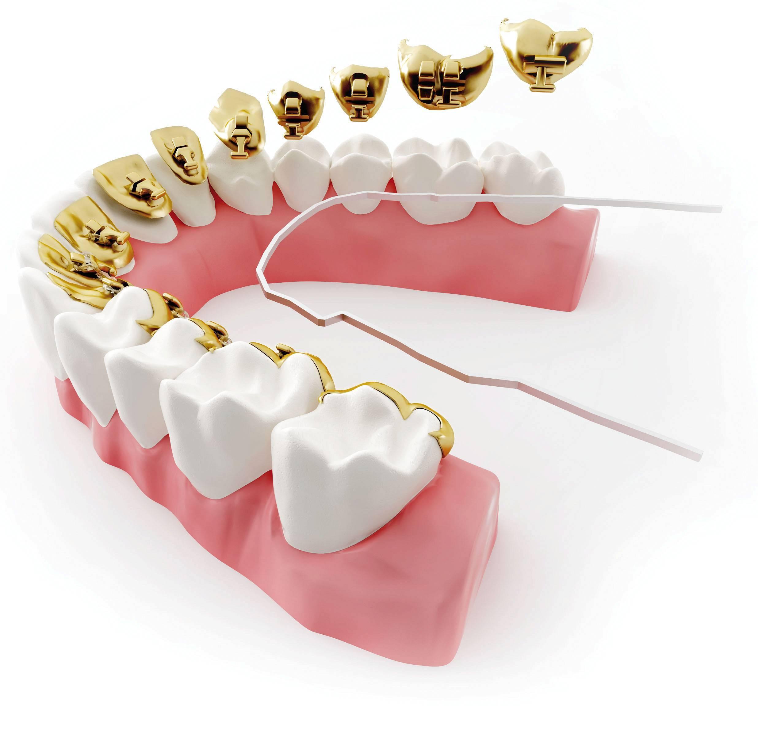 Ретенционные аппараты в ортодонтическом лечении