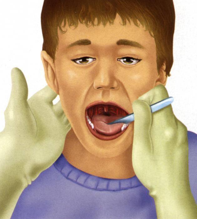 Удаление миндалину детей и взрослых - отзывы больных. операция по тонзиллэктомии - показания и последствия