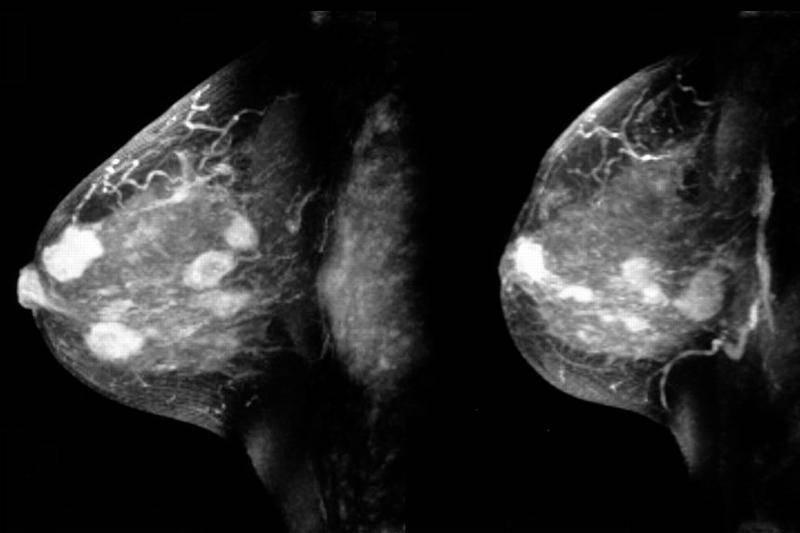Симптомы заболеваний, диагностика, коррекция и лечение молочных желез — molzheleza.ru. опухоли молочной железы у женщин: симптомы доброкачественных и злокачественных новообразований