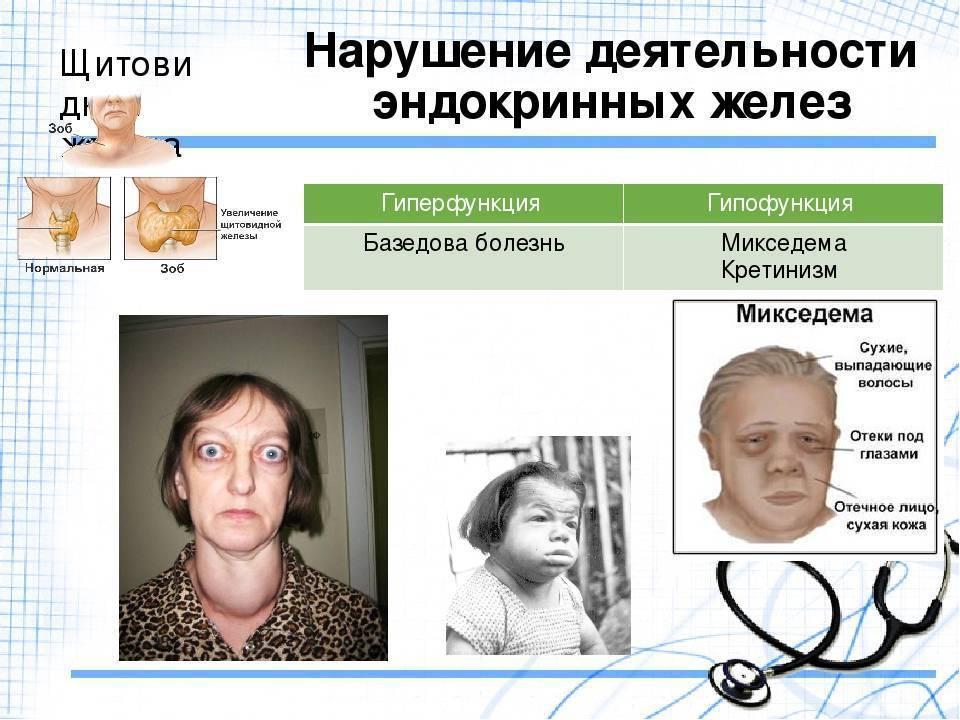 эндокринная система человека симптомы