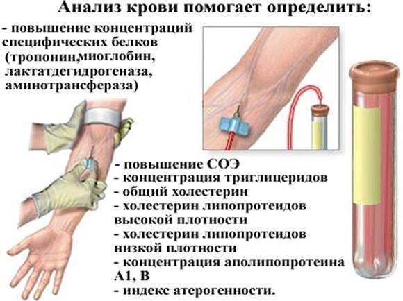 Как подготовиться к биохимическому анализу крови на холестерин