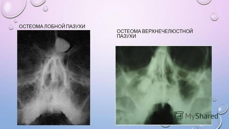 Что такое остеома лобной пазухи, когда нужно оперировать остеому и рекомендации после удаления