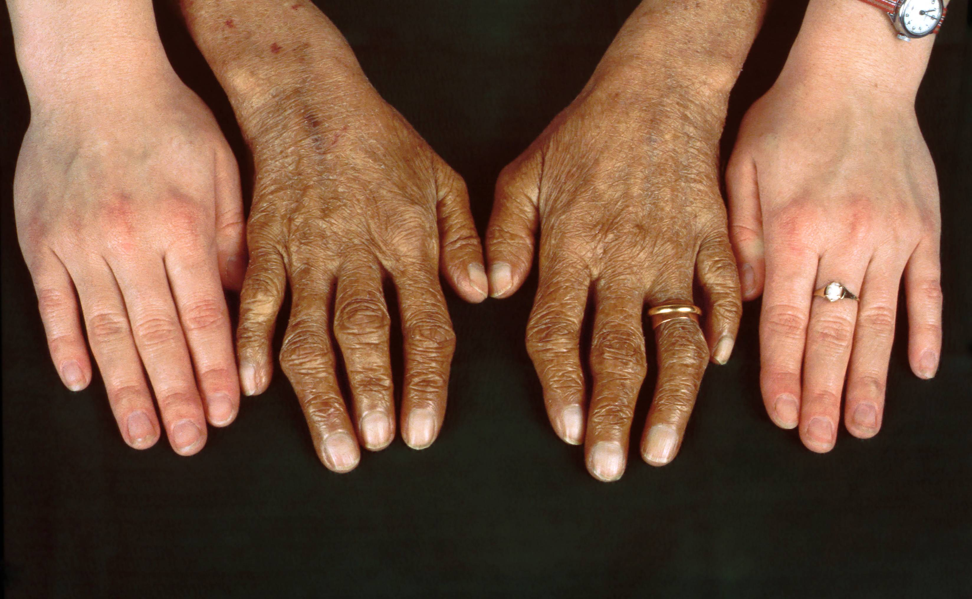 Симптомы болезни печени. заболевания печени – симптомы и признаки болезни на лице, на коже