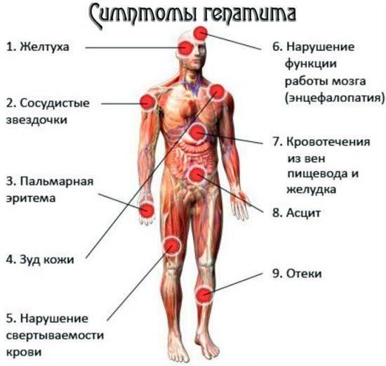 гепатит с симптомы у мужчин первые