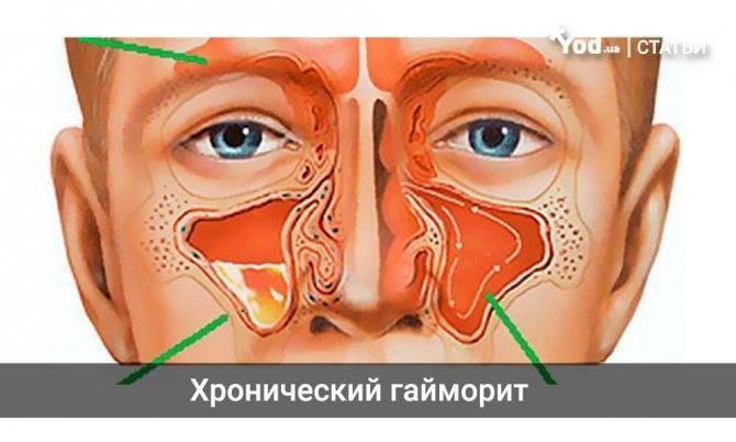 Хронический гайморит - симптомы, как вылечить у взрослых