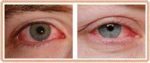 После сна глаза красные и болят