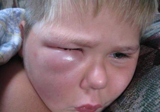 укус мошки в глаз лечение ребенка
