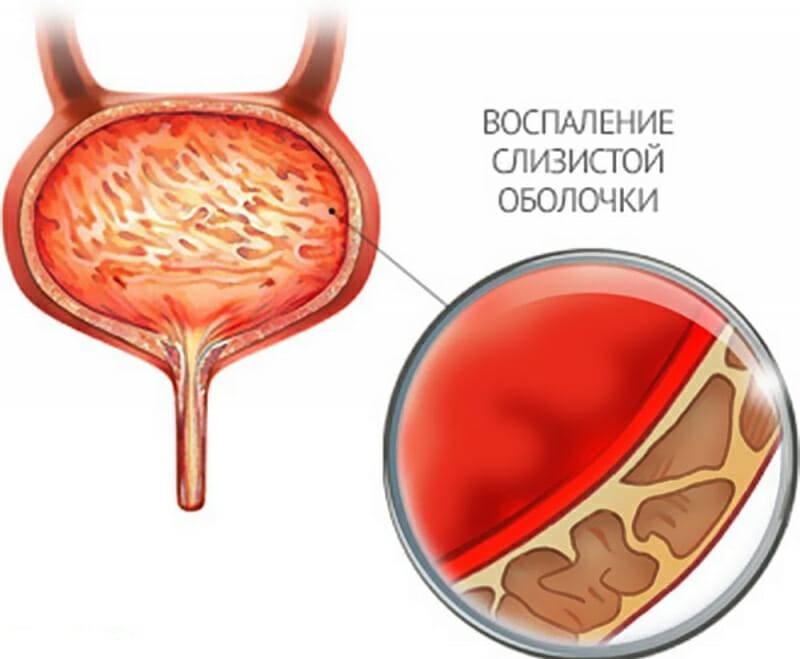 Цистит у женщин: симптомы и лечение