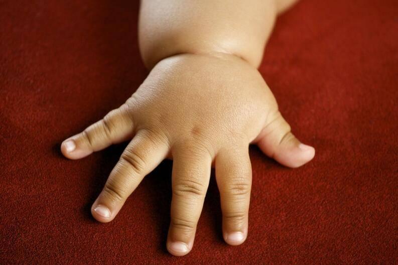 Контактный дерматит у взрослых и детей: симптомы и лечение, особенности на руках и на лице, фото