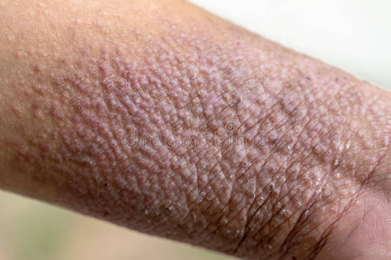 атопический дерматит неуточненный