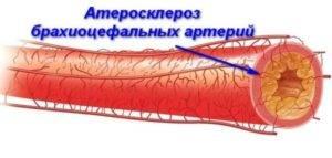 атеросклероз внечерепных отделов бца