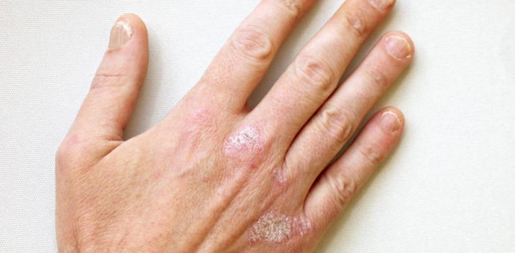 Смягчающие и увлажняющие средства при псориазе «  псориаз? давайте лечиться вместе.