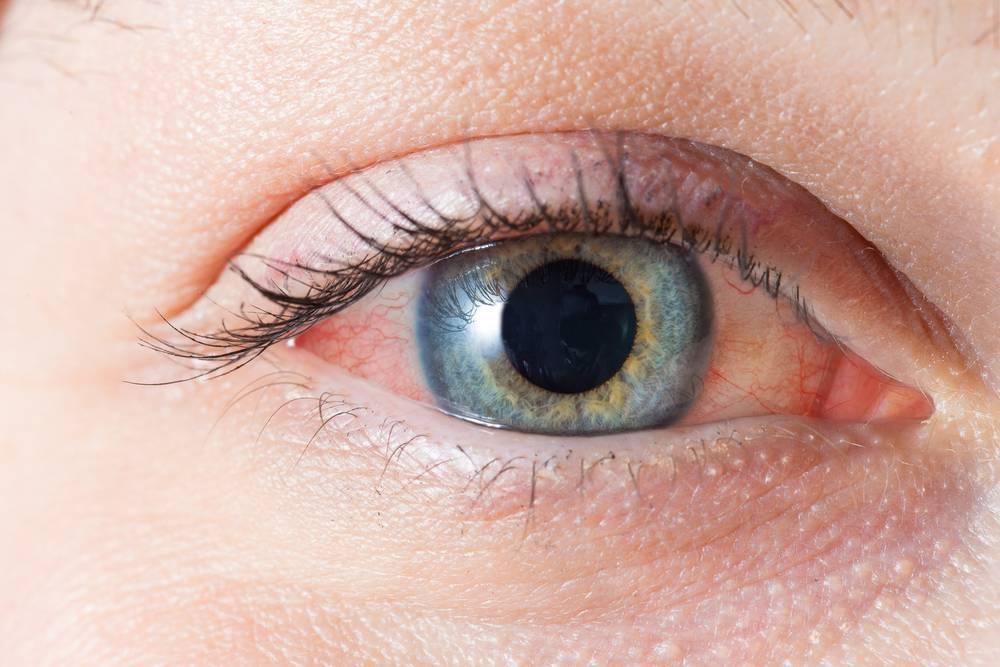 Чешутся глаза в уголках - что делать, причины зуда и лечение