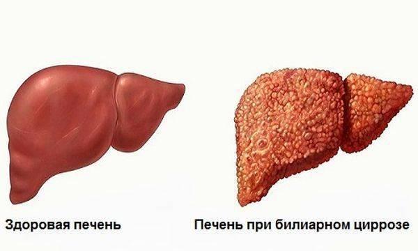 Лечение билиарного цирроза - медицинский портал eurolab