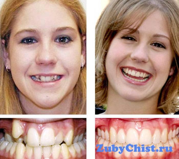 Как выровнять зубы без брекетов у подростков