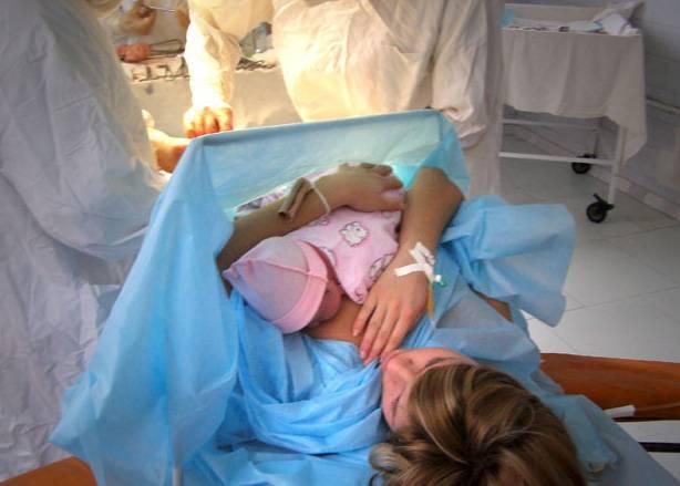 Кесарево по зрению - запись пользователя evochka (skoro_budu_mamoi) в сообществе здоровье будущей мамы и малыша в категории кесарево - babyblog.ru