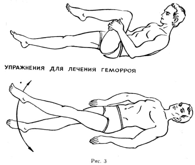 Упражнения при геморрое для женщин и мужчин