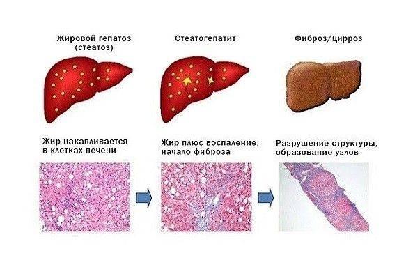 жировой гепатоз печени симптомы и лечение народными средствами