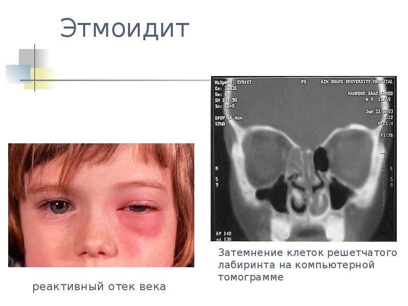Этмоидит. причины, симптомы