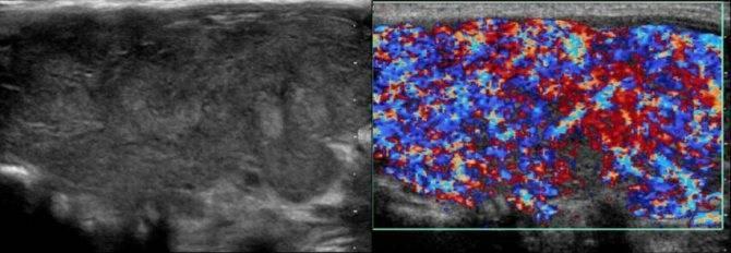 Неоднородная структура щитовидной железы у ребенка 6 лет