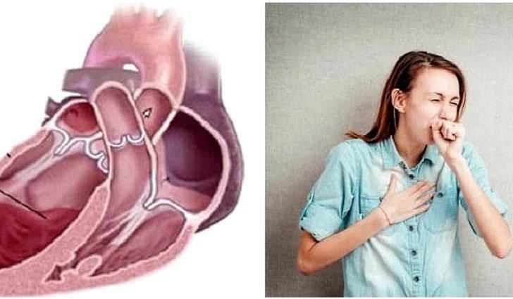Сердечный кашель (кашель при сердечной недостаточности) – симптомы, признаки и лечение