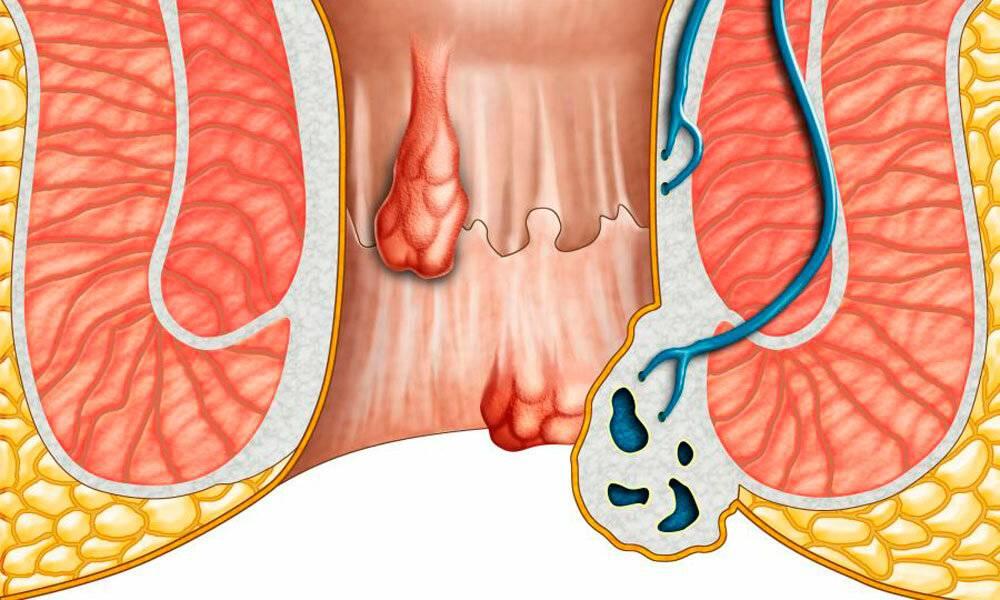 Начальная 1 стадия геморроя — лечение и профилактика