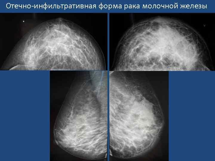 инфильтрирующая карцинома молочной железы
