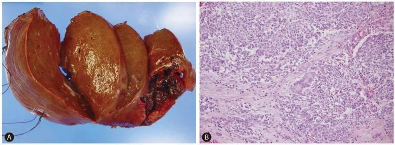 Гепатоцеллюлярный рак: прогноз, симптомы и лечение