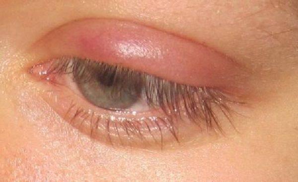 Как выглядит ячмень на глазу у ребенка — что делать, советы комаровского