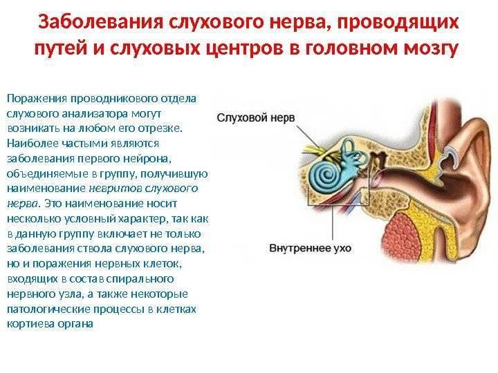 Что такое неврит слухового нерва у ребенка