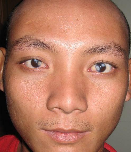 мутный глаз у человека