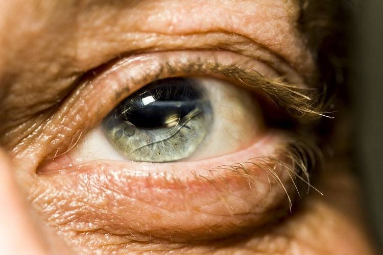 повреждение роговицы глаза последствия