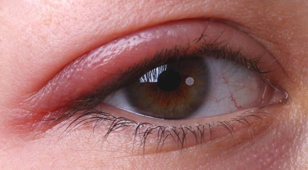 покраснение века глаза